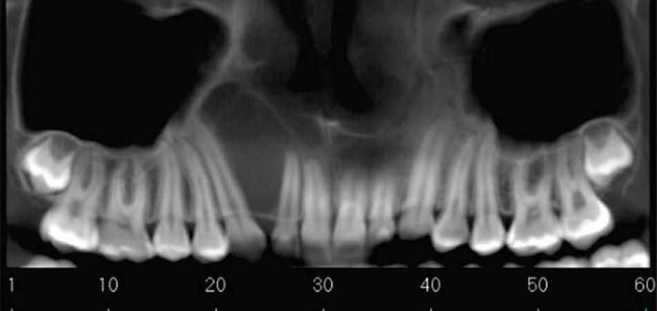 noticia importancia da tomografia da neox radiologia digital odontologica odontologia uberaba