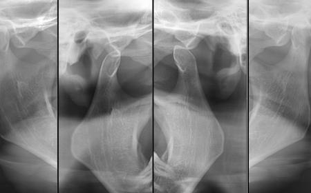 exame atm na neox radiologia digital odontologica odontologia uberaba